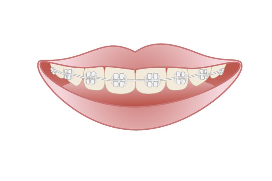 歯列矯正 北山歯科医院