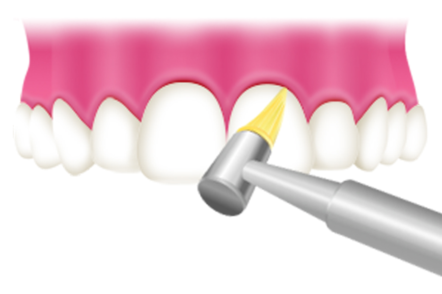 pmct バイオフィルムを破壊する最新の虫歯予防